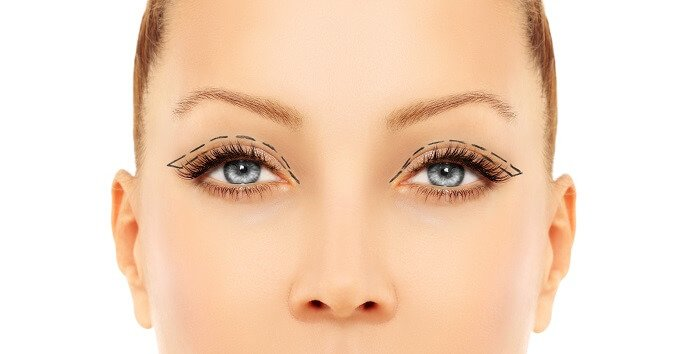 Ako prebiera operácia očných viečok?