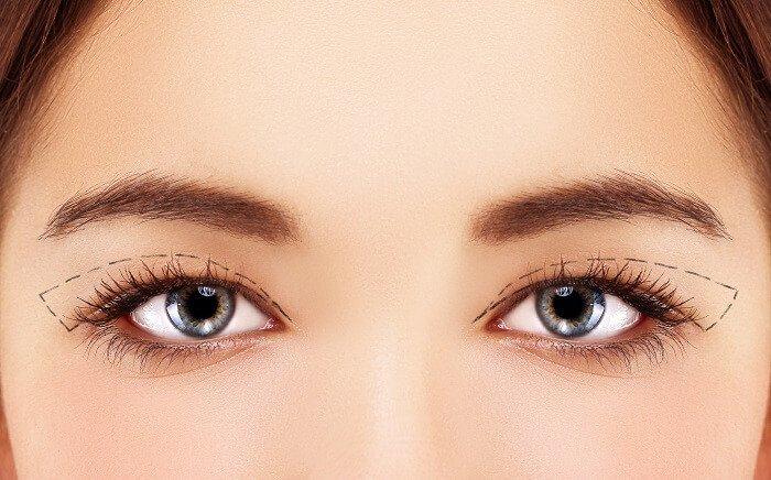 Plastická operácia očných viečok
