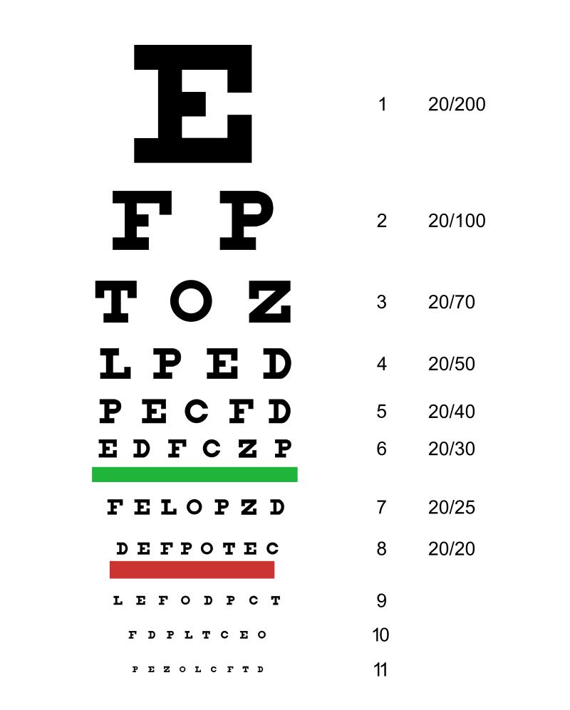 test krátkozrakosti Veni-Vidi