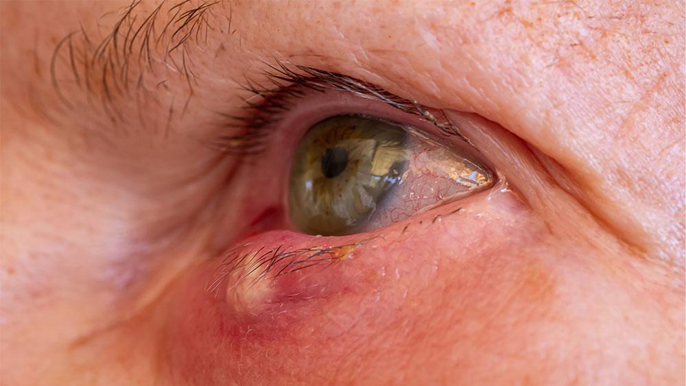 Ako vyliečiť jačmeň na oku?